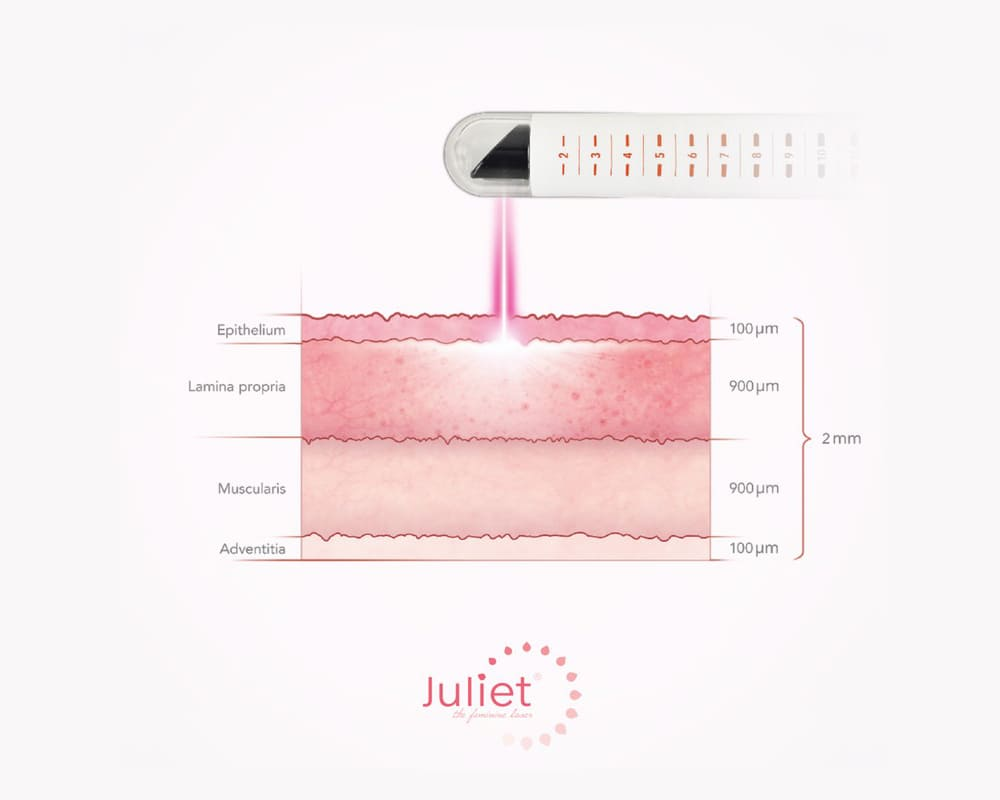 Juliet – the feminine laser